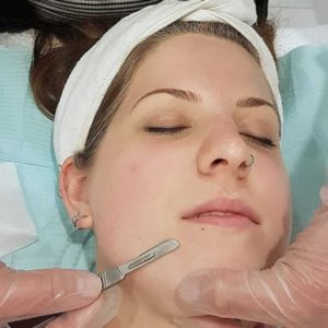 woman getting a dermaplaning facial by a professional